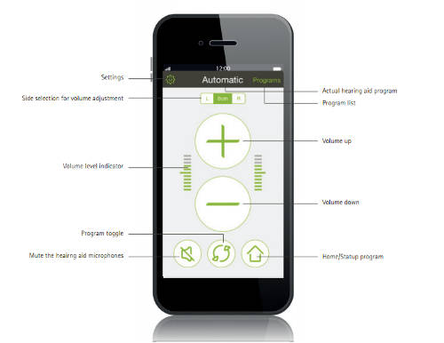 The Phonak RC App explainer